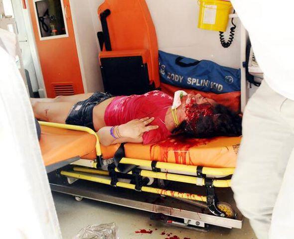 Persona herida en los disturbios