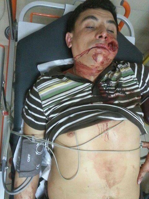 Herido bala Estambul