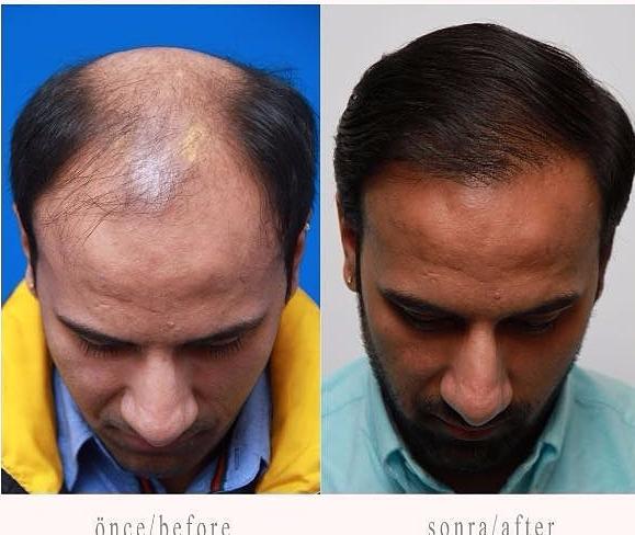trasplante de pelo